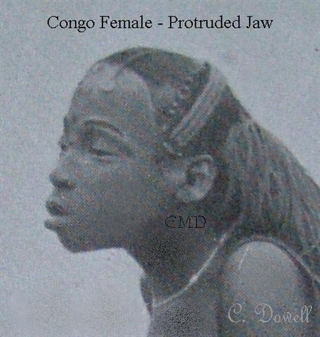 Image of Congo female with protruded jaw African descendentElongated Skulls Africa